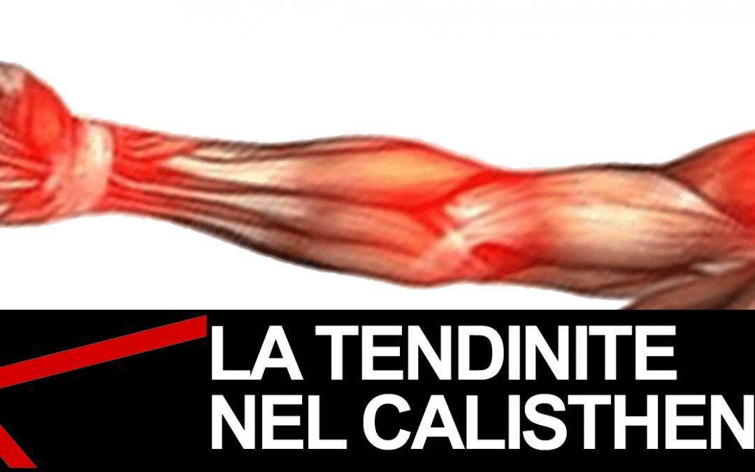 CALISTHENICS TENDINITE